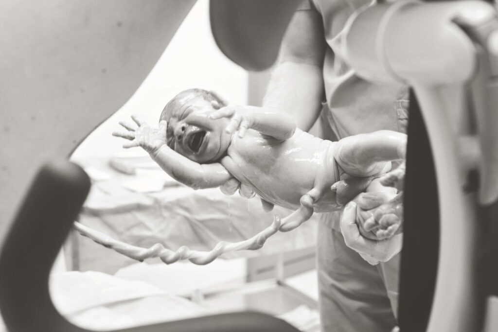 Doğum Fotoğrafı